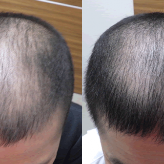AGA 薬 治療前と後(4か月)40代男性/病院