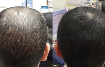 AGA 薬 治療前と後(11か月)40代男性/病院