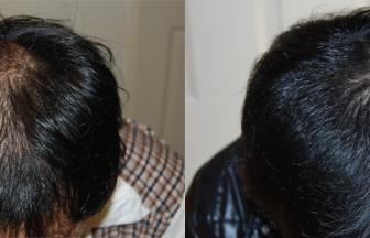 20代 男性 ⅡVertex型 治療期間6か月