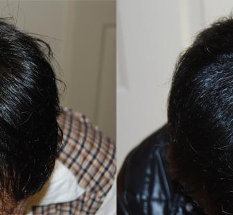 AGA 薬 治療前と後(6か月)20代男性/病院