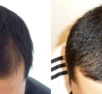 AGA 薬 治療前と後(8か月)20代男性/病院