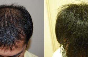 20代 男性 ⅡVertex型 治療期間8か月