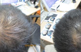 30代 男性 ⅡVertex型 治療期間3か月