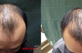 30代 男性 Ⅳ型 治療期間3か月