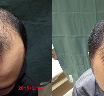AGA 薬 治療前と後(3か月)30代男性/病院