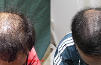 30代 男性 ⅢVertex型 治療期間11か月