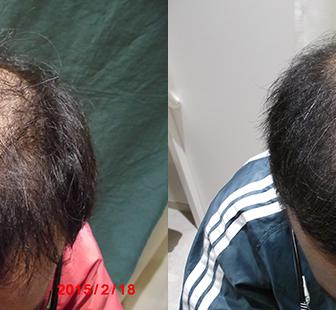 AGA 薬 治療前と後(11か月)30代男性/病院