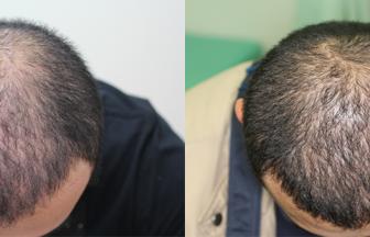 30代 男性 ⅡVertex型 治療期間5か月