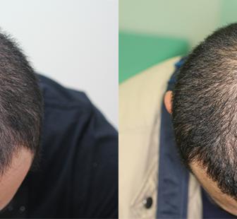 AGA 薬 治療前と後(5か月)30代男性/病院