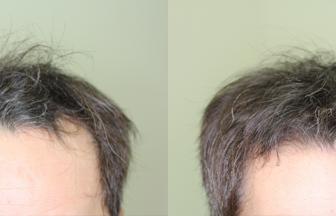 30代 男性 Ⅱ型 治療期間6か月