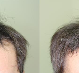 AGA 薬 治療前と後(6か月)30代男性/病院