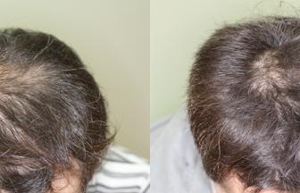 30代 男性 ⅡVertex型 治療期間6か月