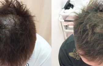 30代 男性 ⅢVertex型 治療期間3か月