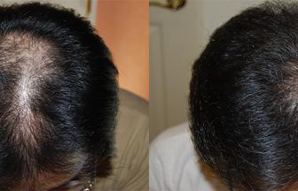 30代 男性 ⅢVertex型 治療期間6か月