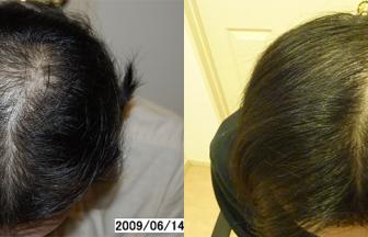 30代 男性 ⅢVertex型 治療期間8か月