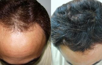 30代 男性 Ⅲ型 治療期間6か月