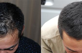 30代 男性 Ⅲ型 治療期間4か月