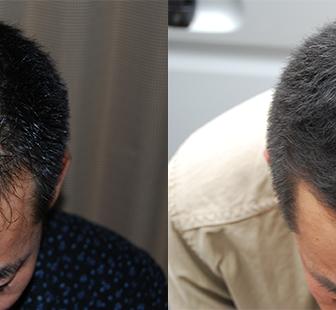 AGA 薬 治療前と後(4か月)30代男性/病院