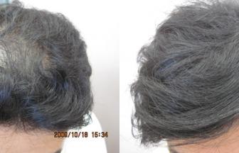 30代 男性 ⅡVertex型 治療期間7か月