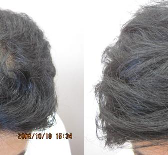 AGA 薬 治療前と後(7か月)30代男性/病院