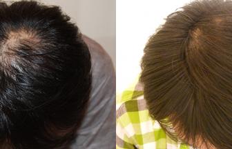 30代 男性 ⅡVertex型 治療期間4か月