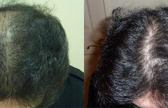 30代 男性 ⅢVertex型 治療期間4か月