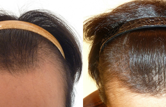 30代 男性 ⅢVertex型 治療期間13か月