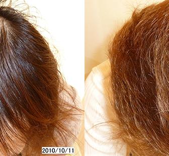 AGA 薬 治療前と後(9か月)30代男性/病院