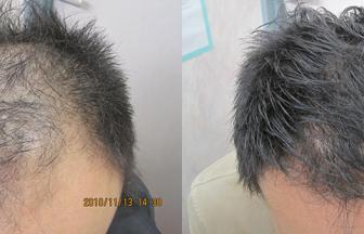 30代 男性 Ⅵ型 治療期間6か月