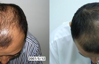 40代 男性 V型 治療期間5か月