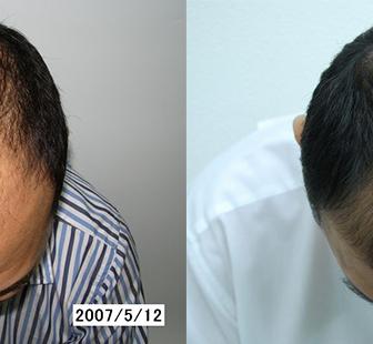 AGA 薬 治療前と後(5か月)40代男性/病院