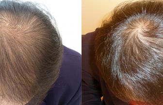 40代 男性 V型 治療期間6か月