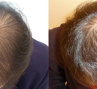 AGA 薬 治療前と後(6か月)40代男性/病院