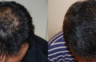 40代 男性 ⅡVertex型 治療期間15か月