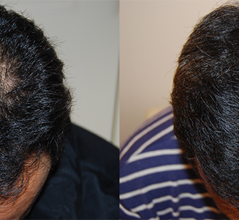 AGA 薬 治療前と後(15か月)40代男性/病院