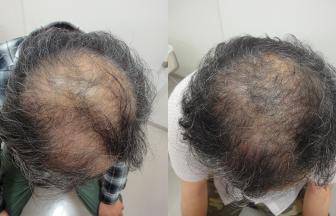 50代 男性 V型 治療期間7か月