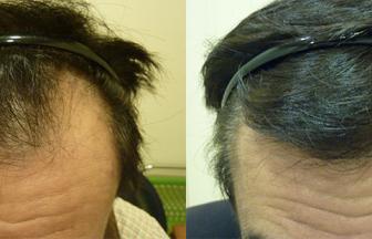 50代 男性 ⅢVertex型 治療期間6か月