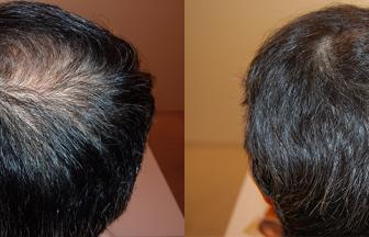 50代 男性 ⅡVertex型 治療期間5か月