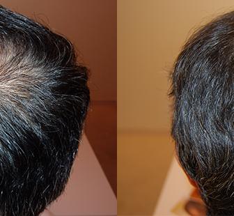 AGA 薬 治療前と後(5か月)50代男性/病院