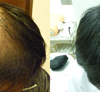 AGA 薬 治療前と後(6か月)50代男性/病院