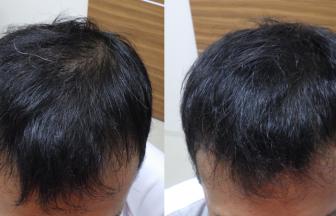 40代男性 Ⅱvertex型 治療期間4か月
