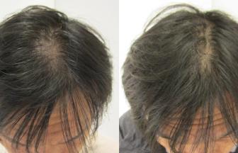 40代男性 Ⅲvertex型 治療期間3か月