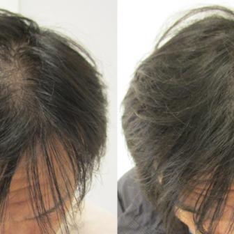 AGA 薬 治療前と後(3か月)40代男性/病院