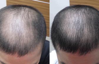 40代男性 Ⅳ型 治療期間4か月