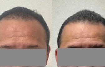 40代 男性 Ⅲ型 治療期間6か月
