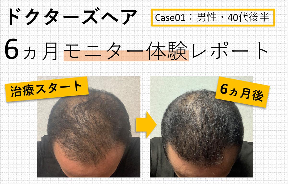 AGA発毛治療モニターレポート Case01:男性・40代後半