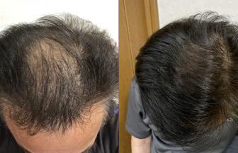 60代 男性 Ⅲ型 治療期間6か月